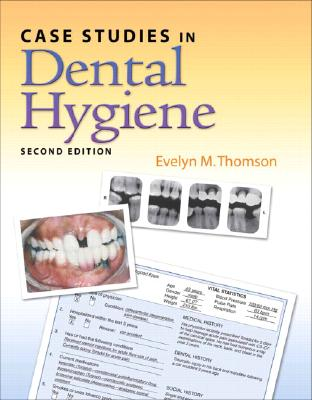 Case Studies in Dental Hygiene (2nd Edition), Evelyn Thomson (Author)
